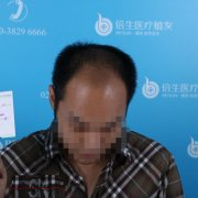 瑞士NAT美学植发是广州种植头发最有效的技术