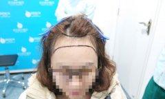 瑞士NAT美学植发技术:发际线完美逆袭