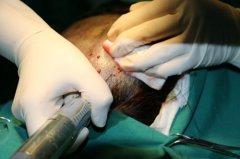 瑞士NAT美学植发技术到底有何特别之处?