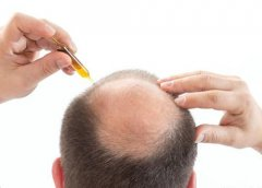 如何防止脱发的发生?