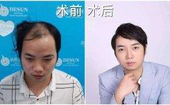 广州种头发需要多少钱?
